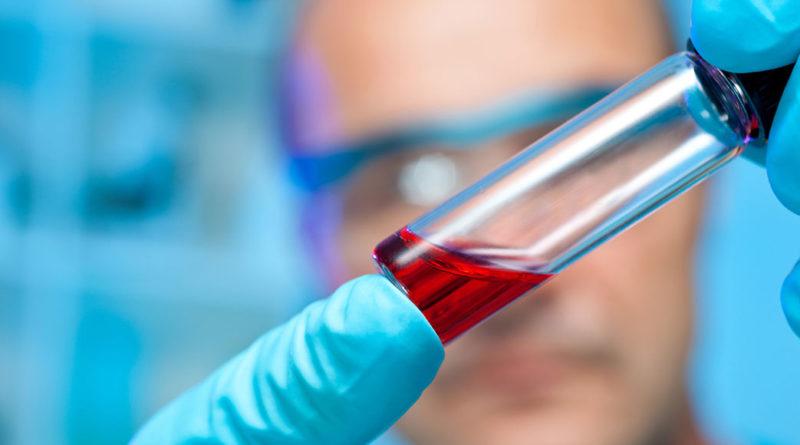 Laboratorio de U. San Sebastián en Aysén podría diagnosticar a futuro otras patologías respiratorias